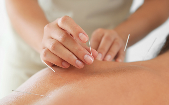 Accupuncture Therapy