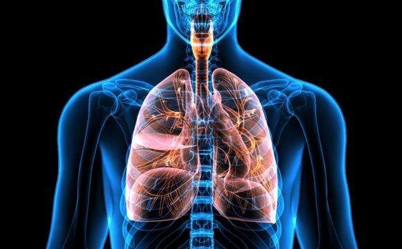 KOAH (Kronik Obstrüktif Akciğer Hastalığı)